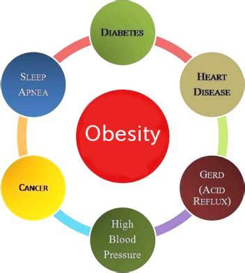 Solutions for obesity essay